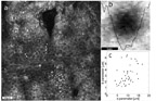 Automated identification of epidermal keratinocytes in reflectance confocal microscopy