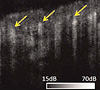 In vivo volumetric imaging of microcirculation within human skin under psoriatic conditions using optical microangiography