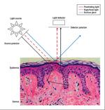 Polarized and nonpolarized dermoscopy